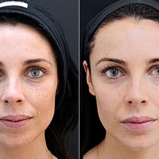 Lynne-Hyland-before-and-after-Fillers