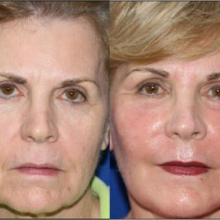 mid-facelift-before-and-after-photo