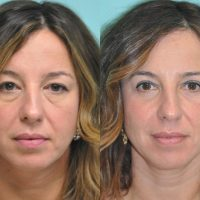 patient-1-blepharoplasty-before-after-1200×870