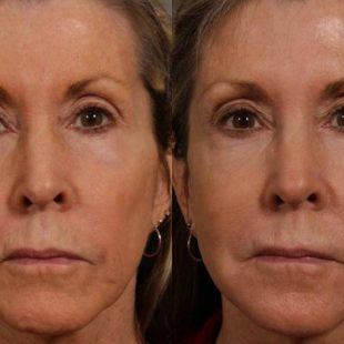patient-12702-injectable-fillers-before-after-6