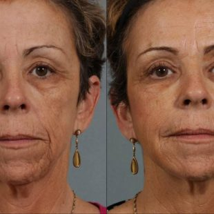 patient-12736-injectable-fillers-before-after-3-1200×792