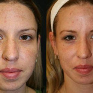 patient-12830-laser-treatment-before-after-4
