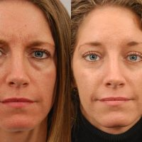 patient-2658-blepharoplasty-before-after-1