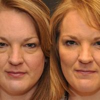 patient-5508-blepharoplasty-before-after-2